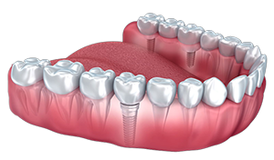 3D Jaw Structure Implant