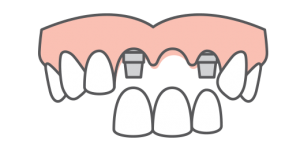 Multiple teeth being replaced with an implant-supported bridge