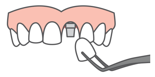 A single implant being place into an arch of teeth